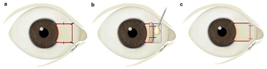 Cirugia-de-Pterigium1